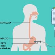 La nutrizione enterale - l'inserimento della PEG